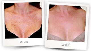 Turn Back Time Spa and Wellness Clinic offers a treatment to remove sun spots, redness, rosacea and more