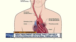 New options to prevent strokes in people with A-fib