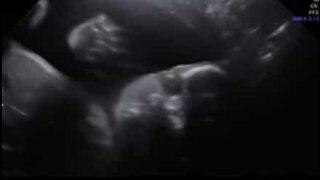 Bebê olha para câmera e acena durante ultrassom