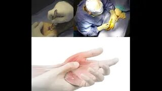 Carpal Tunnel Patient is Left Scar less After Surgery