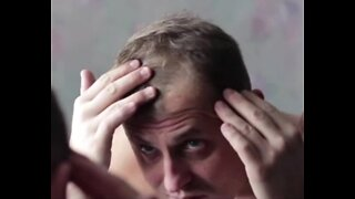Baldness may be a new coronavirus risk factor