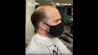 Amazing Hair Transplant Transformations