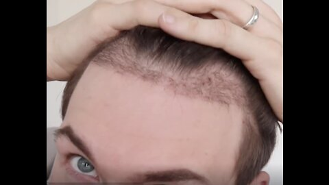 Man Documents Hair Transplant Process Over Six Months!