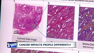 Artificial intelligence could help tailor game-changing prostate cancer treatment
