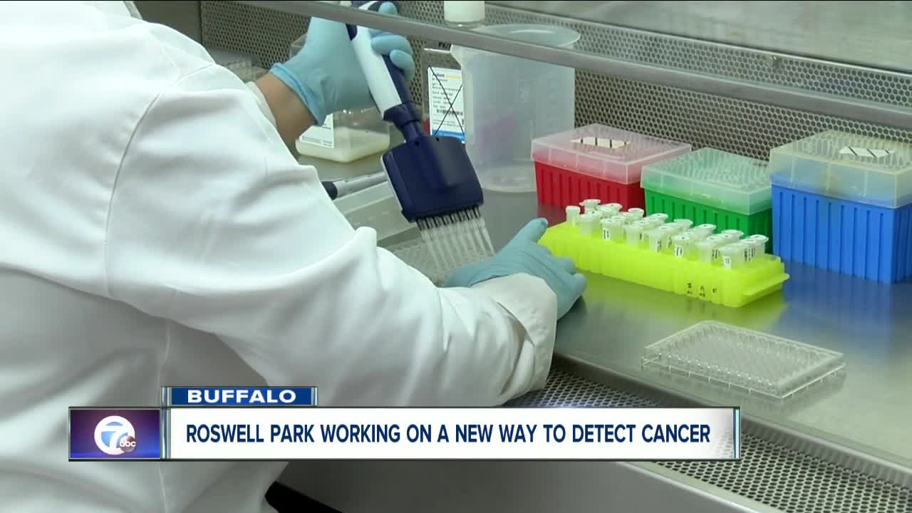 Roswell Park working on a new way to detect ovarian cancer