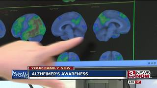 Benefit of early diagnosis for Alzheimer's disease