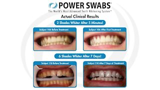 Power Swabs: Get a whiter, brighter smile in just minutes!
