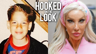 From Teen Boy To $1M Plastic Barbie   HOOKED ON THE LOOK
