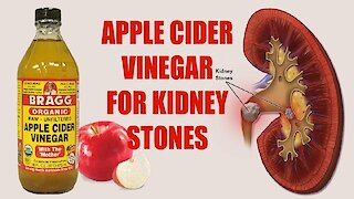 How To Use Apple Cider Vinegar To Dissolve Kidney Stones
