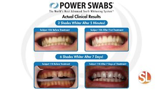 Want to look younger, healthier? Try Power Swabs Teeth Whitening