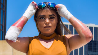 The 20-Year-Old With Butterfly Skin | BORN DIFFERENT