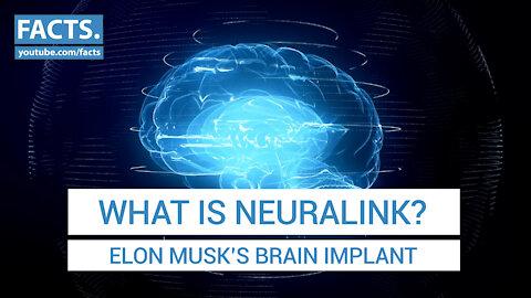 What is Neuralink? - Elon Musk's Brain Implant