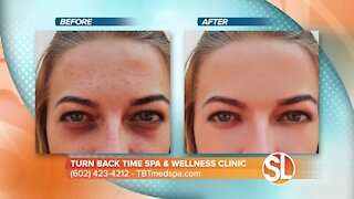Watch how Turn Back Time Spa & Wellness Clinic can remove dark spots, age spots and much more from your skin