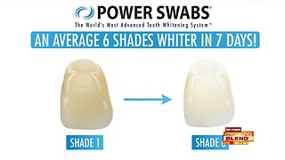 Smile Brightly With Whiter Teeth