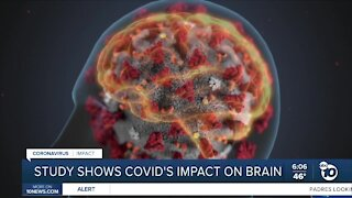 Study shows how COVID-19 attacks brain cells