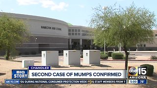 Second case of mumps in Valley confirmed