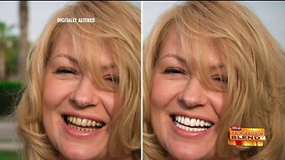 Get Your Confidence Back with a Whiter Smile