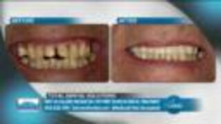 What Does It Mean to Be Able to Smile Again? // Barotz Dental