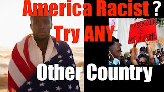 Think America is Hateful + Racist? Try ... ANY Other Country