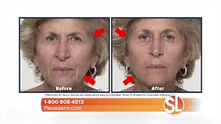 Give you mom the gift of looking younger this Mother's Day with Plexaderm