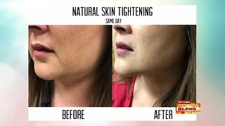 Look Younger In 60 Minutes!