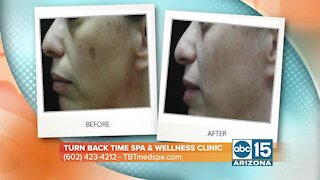 Learn how Turn Back Time Spa & Wellness Clinic can help improve your skin