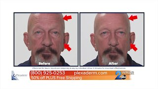 Feel and look younger with Plexaderm