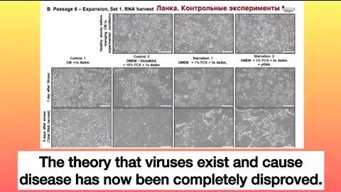 The Final Refutal Of Virology. Please Share.