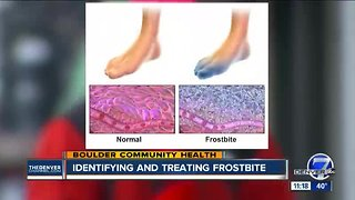 Boulder Community Health: Identifying and Treating Frostbite