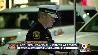 Accused hit-and-run driver arrested after crash severed man's leg
