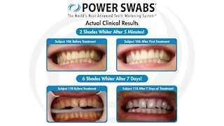See how you can get a whiter, brighter smile in just minutes with Power Swabs!