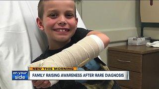 Ravenna family raising awareness after a rare diagnosis
