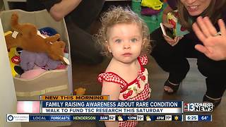 Family raising awareness about rare condition