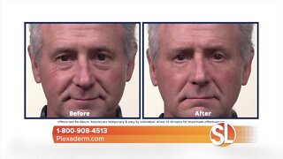 Look instantly younger with Plexaderm