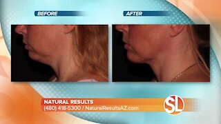 Dr. Scottsdale can help erase your saggy skin