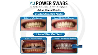 Get your teeth whiter with Power Swabs