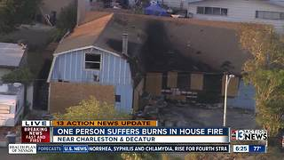 1 person injured in house fire