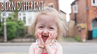 The Only Girl In The World With 'Benjamin Button' Disease | BORN DIFFERENT