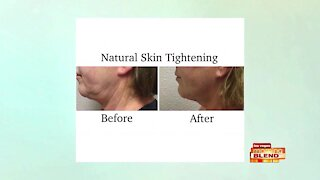 Look Younger With No Downtime
