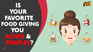 4 Surprising foods that might be giving you acne &
