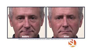 See how you can look younger with Plexaderm