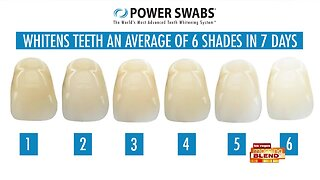 Whiter Teeth Will Lead To Happier Smiles