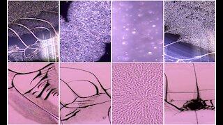 Janssen vaccine under light microscopy