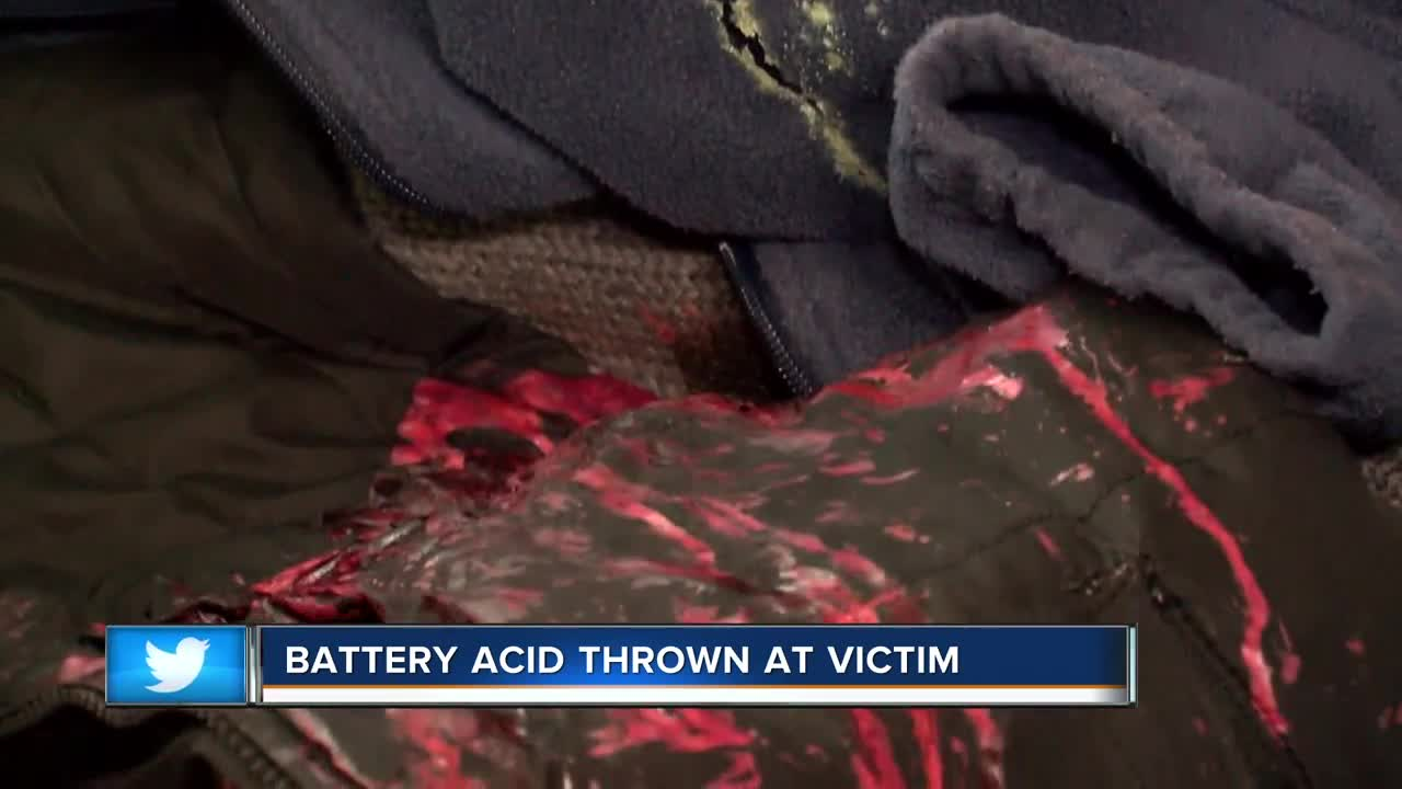 Man attacked with battery acid in Milwaukee