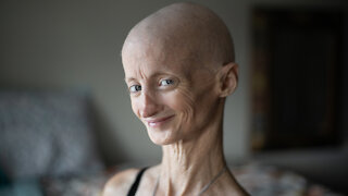 Progeria Has Taken My Teeth But Not My Smile   BORN DIFFERENT