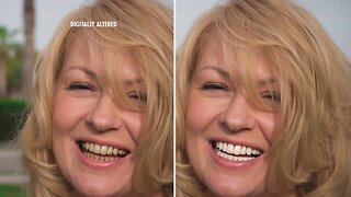 Whiten Your Teeth With Ease