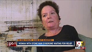 Woman with 'stone man syndrome' still waiting for relief