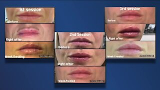 FDA warns public not to use popular 'hyaluron pen' cosmetic device