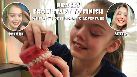Braces Start to Finish Whitney Bjerken's Orthodontic Adventure