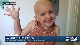 Valley girl inspires others after brain tumor treatment